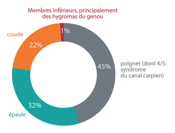 Troubles Musculosquelettiques Tms Statistiques Risques Inrs